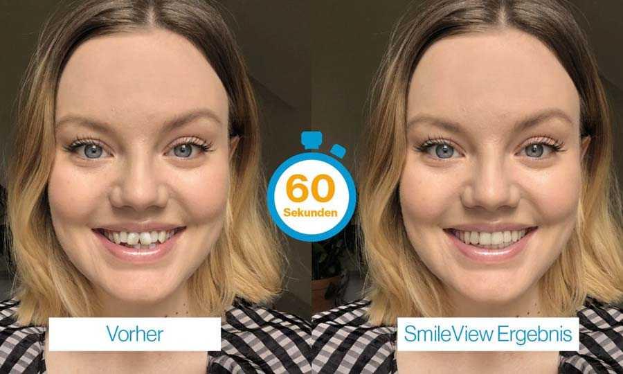 Testen Sie Ihr neues Lächeln